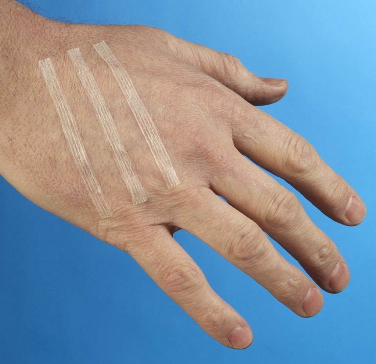 Skin Closure